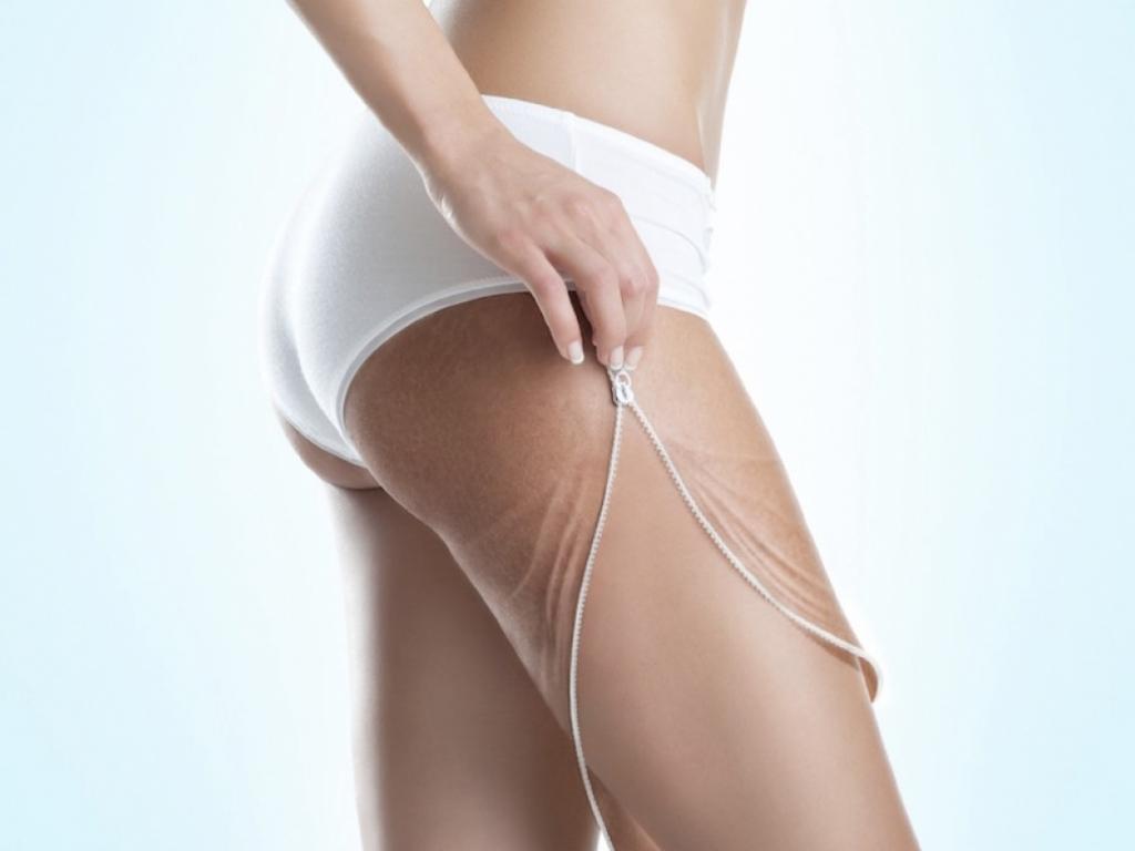 body-firm-and-tone-botti-farmacia-trattamento-anticellulite-smagliature