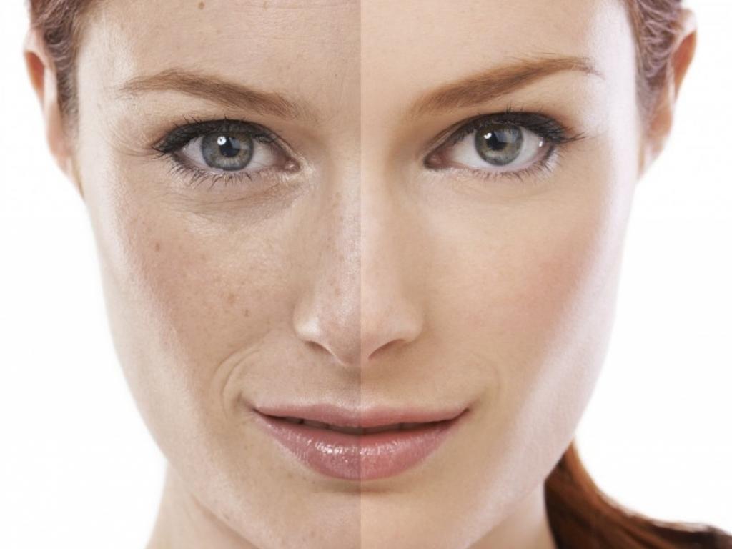 trattamento-per-il-rinnovamento-epidermico-rughe-macchie-viso-pelle-secca